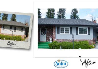 Anlin_Before-After-17